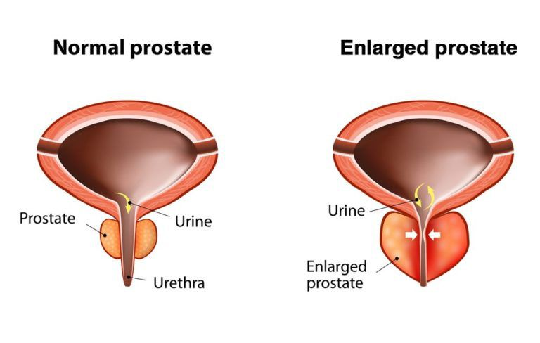 Diagram comparing a normal and enlarged prostate