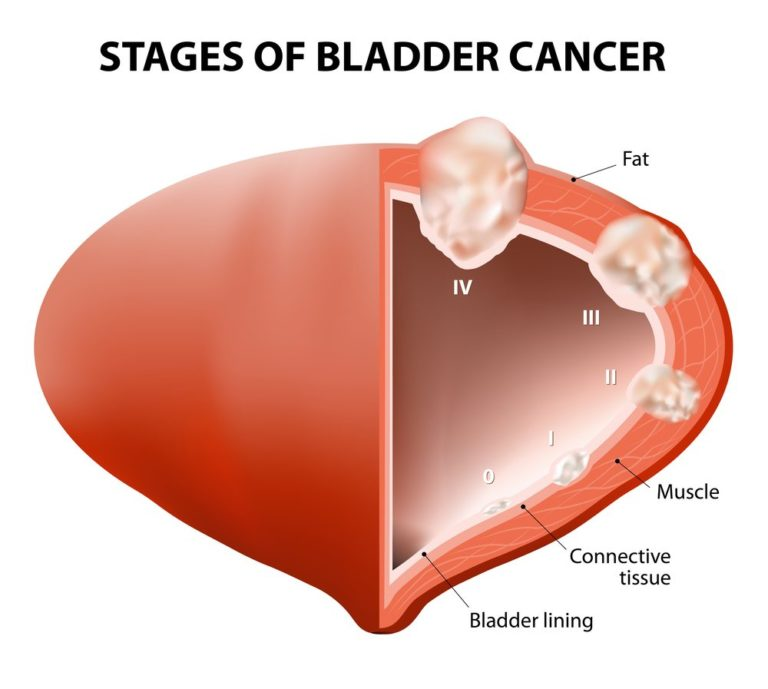 Diagram showing the stages of bladder cancer