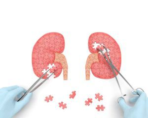 imgage of kidneys made of puzzle pieces and surgeon removing some pieces with surgical tools
