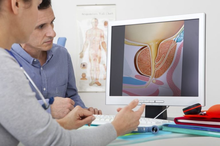 Patient and doctor looking prostate diagram on a computer screen